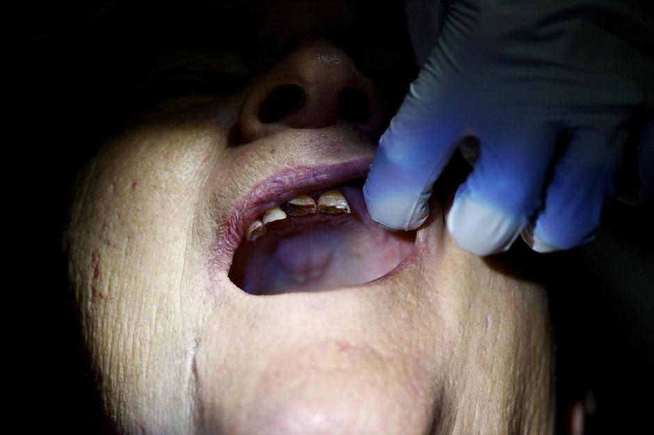 Le &;dentiste de l'horreur&; peut être extradé