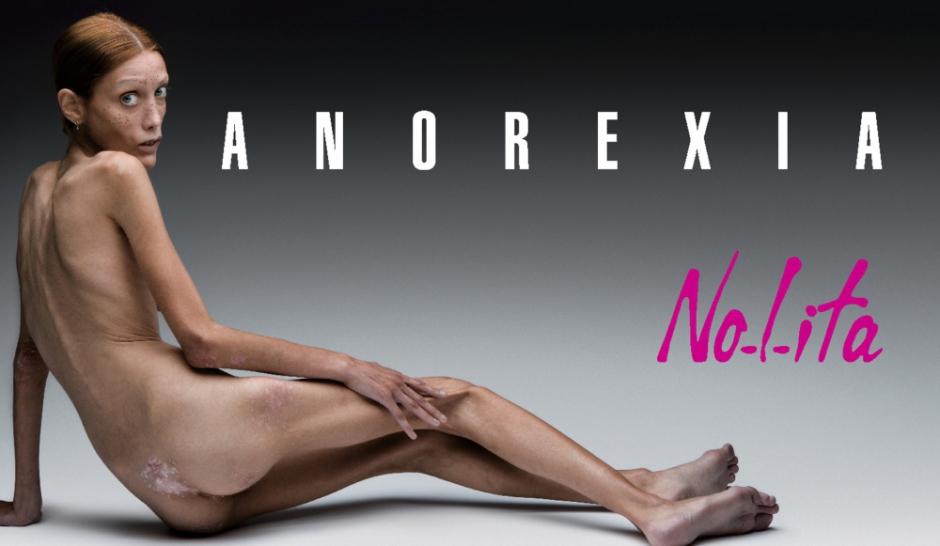 Isabelle Caro, la victime oubliée de l'anorexie